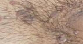 HPV-Genital Siğil-Kondilom