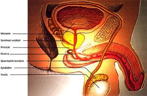 akut prostatit nedir
