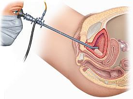 fleksibl sistoskopi ile teşhis ve tedavi